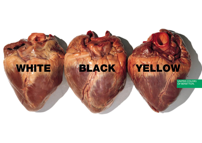 cuore benetton pubblicità contro anti razzismo
